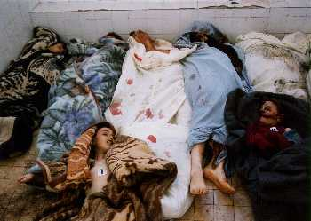 Eposed How Kosovo Serbs Were Butchered By Muslims For Their Ans